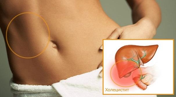 холецистит симптомы и лечение у женщин